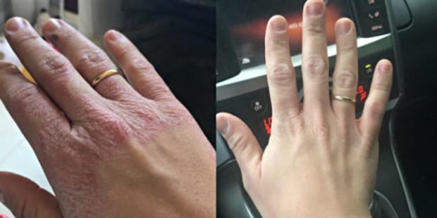 .A mão de María antes e depois de visitar Lourdes.